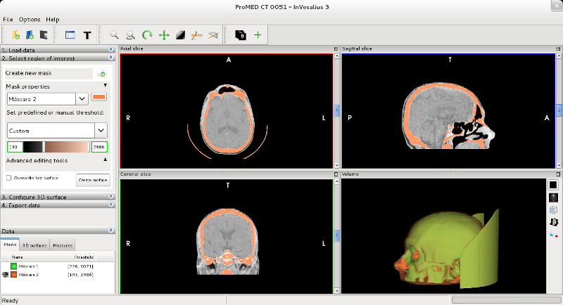 Ator 2014 in several projects it is possible to work with dicom data ccuart Image collections